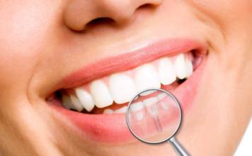 clinica dental pamplona