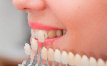 adhesion dental