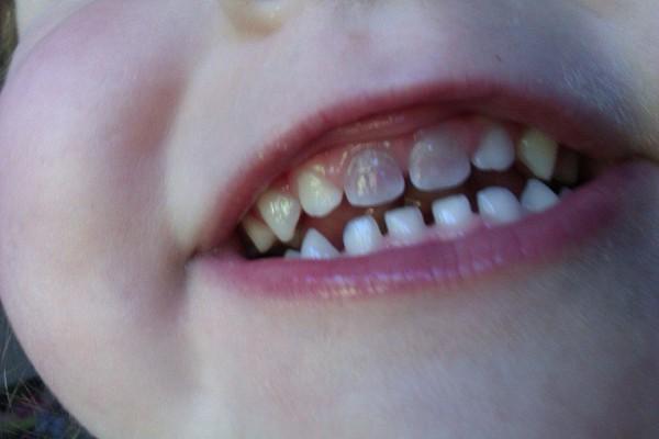 diente de leche oscurecido