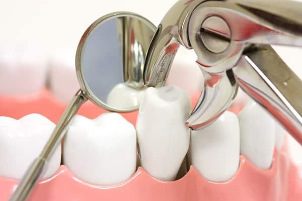 extraccion de dientes