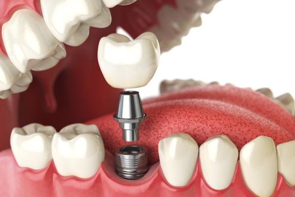 cuidado de implantes