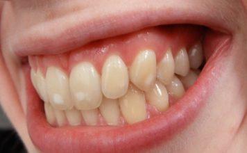 dientes manchas cafe esmalte
