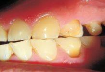 esmalte dental manchas