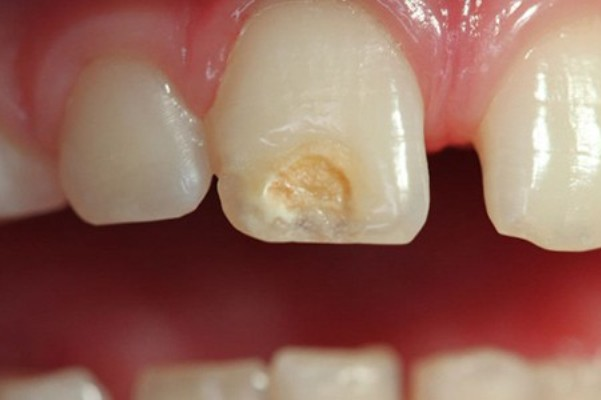 hipoplasia-dental-esmalte