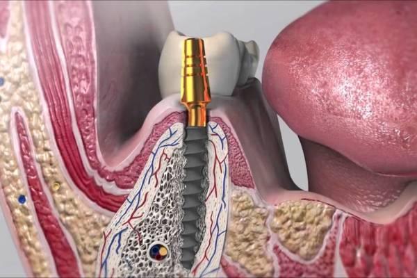 osteointegracion implantes dentales