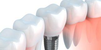 implante dientes