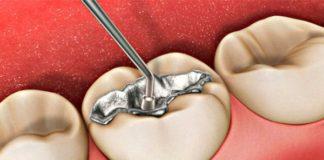 restauracion dental amalgama