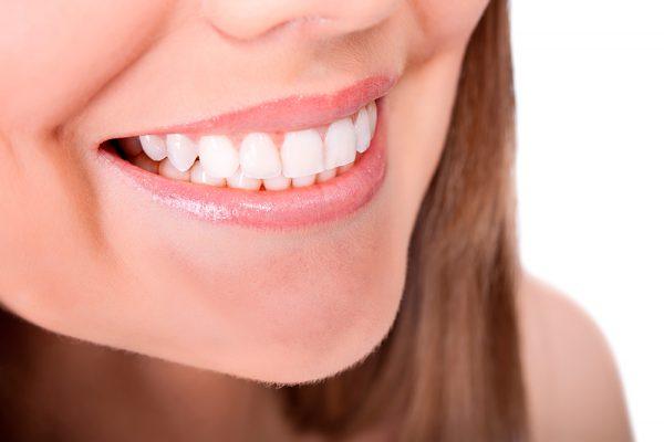 dientes- sonrisa-