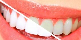 blanqueamiento- dentista
