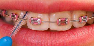 limpieza dental con ortodoncia