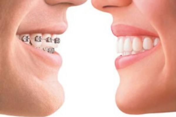 invisalign, ortodoncia invisalign, brackets, ortodoncias