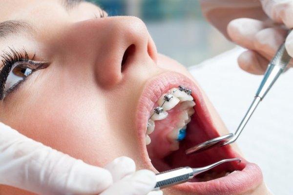 sedo ortodoncia