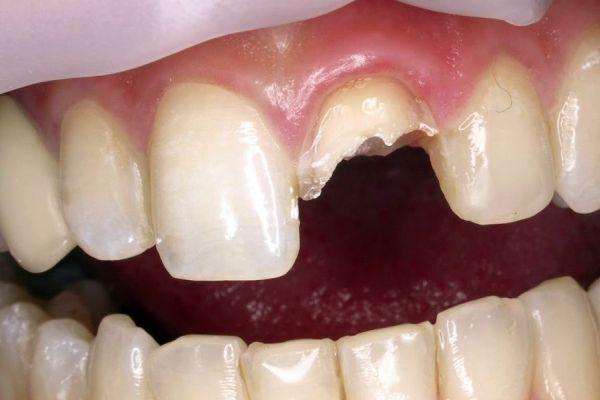 emergencia dental
