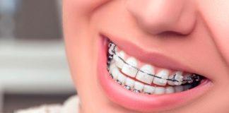 ortodoncia post