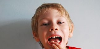 diente de leche caries