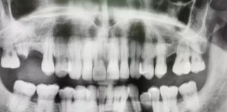 sin ir al dentista