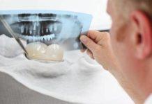 reconsutruccion dental