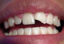 diente roto