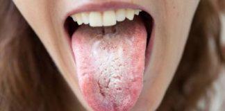 lengua blanca