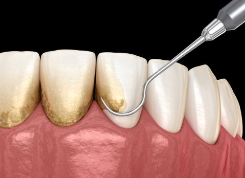 sarro o placa dental