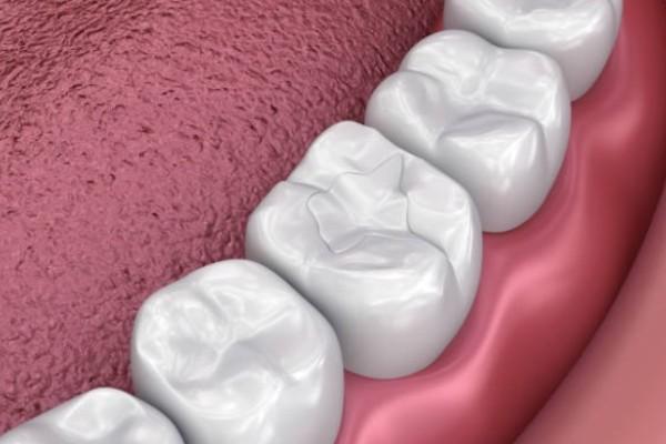 sellador dental