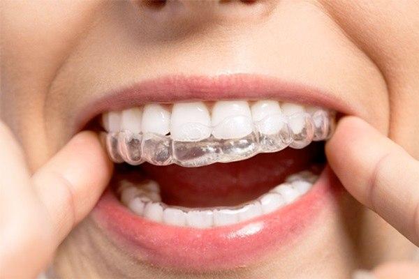 ortodoncia deportistas