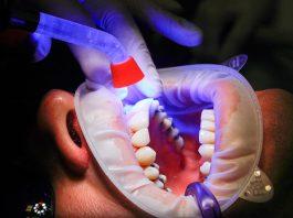 Expertos recomiendan evitar blanqueamientos dentales con carbón activo por su alto riesgo