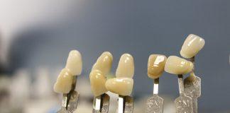 ¿Cuándo está indicado un tratamiento con implante dental?