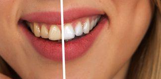 ¿Qué factores afectan el color de los dientes?