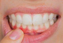 ¿Qué consecuencias puede tener sufrir una enfermedad periodontal?