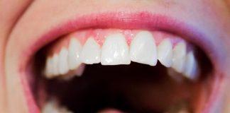 Todo lo que debes saber sobre las infecciones y desórdenes bucales