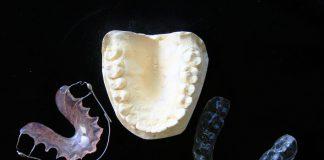 Alertan por la venta por Internet de alineadores dentales sin prescripción facultativa