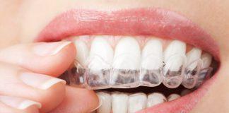 El Consejo General de Dentistas logra que la AEMPS actúe contra empresas de dispensación directa de ortodoncia invisible