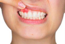 Presentan el libro blanco y guía práctica de la FDI, que abordan la carga global de la enfermedad periodontal