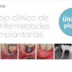SEPA recuerda que este 18 y 19 de mayo inicia el Aula de manejo clínico de las enfermedades periimplantarias