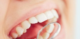 Periodontitis-e-implantes-dentales