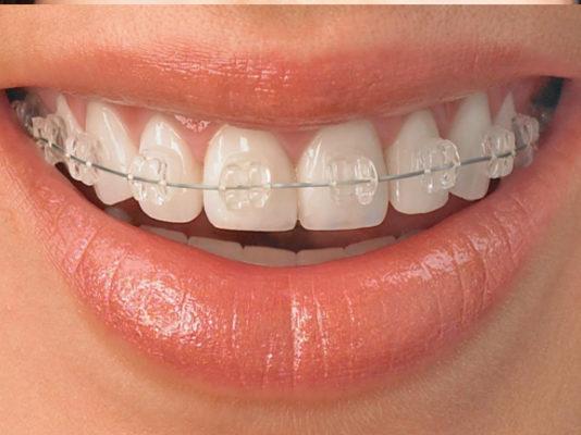 ortodoncia-mordida-cruzada-noticias-dentales-dentistas-en-madrid