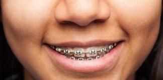 Brackets. Limpieza. Noticias Dentales