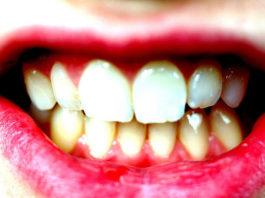 gingivitis-periodontitis