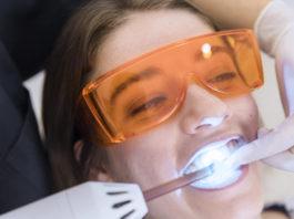 Blanqueamiento dental. Estetica dental
