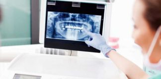 implantes-dentales-digitales