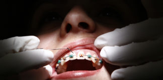 ortodoncia israel