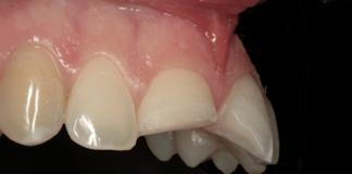 restauraciones dentales