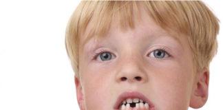 alteraciones dentales