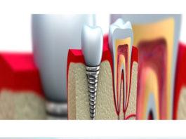 dentistas-en-madrid-implantes-dentales-clinica-dental-pilar-garrido