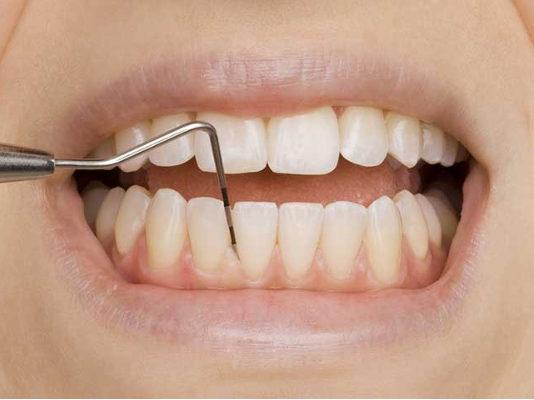 sondeo-periodontal-enfermedad-periodontitis-dentistas-en-madrid