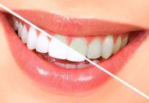 dentista-en-tu-ciudad-blanqueamiento-dental