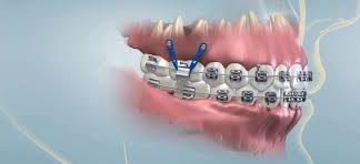 anclajes-ortodoncia-clinica-dentistas-en-madrid