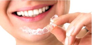 ferula-de-ortodoncia-dentistas-en-madrid