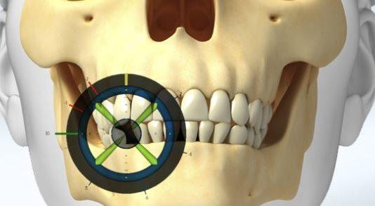 navegacion dinamica cirugia implantes dentistas en madrid